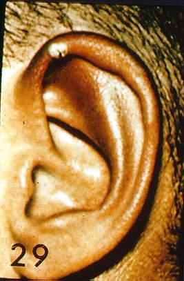 Audiology Forum: VIDEO OTOSCOPY