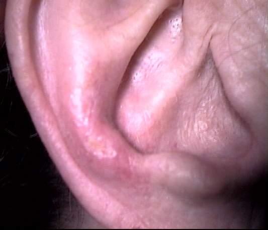 Chondrodermatitis helicis nodularuis (CNH)